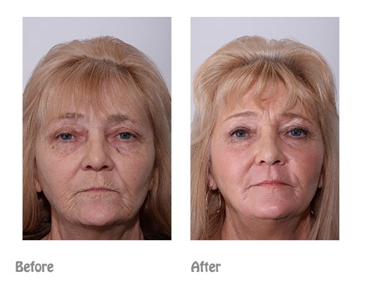 Wrinkles - 'Smokers lines' | Dr Ting Cosmetic surgeon