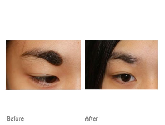 Mole removal   face mole removal   Dr Ting Cosmetic surgeon
