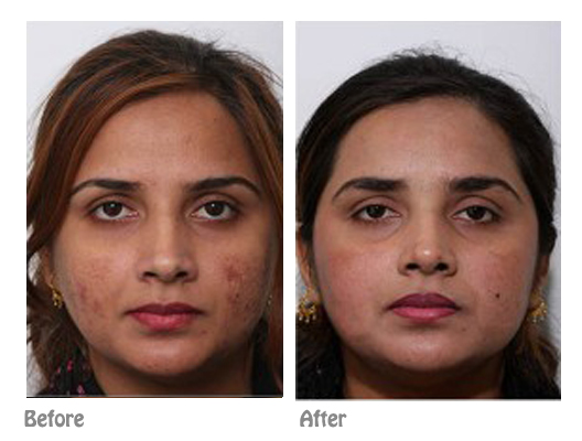 Acne scars laser treatment | Dr Ting Cosmetic surgeon