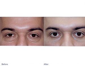 Eyebag 2