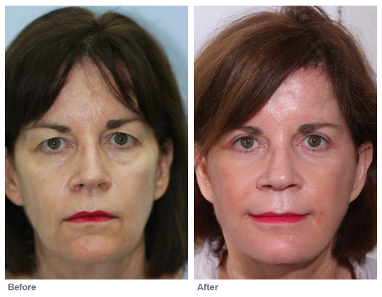 Eyelid surgery - laser eyelids surgery Pioneer in Australia