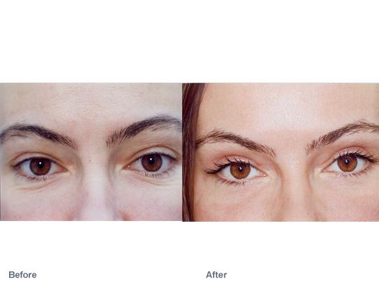 upper-eyelid